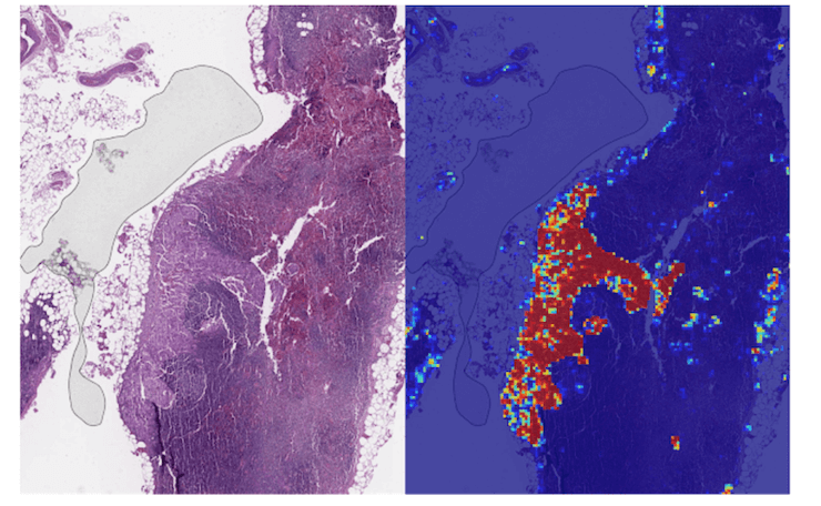 AI-based tools assist in detecting cancer example